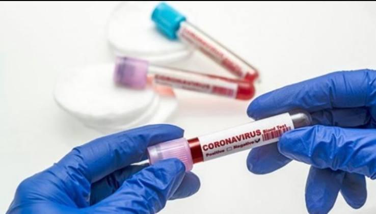Virüsten 233 Can Kaybı