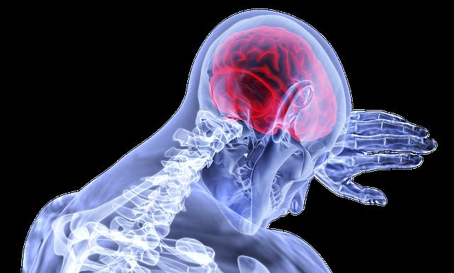 Beyin Check Up'ı Nedir ?