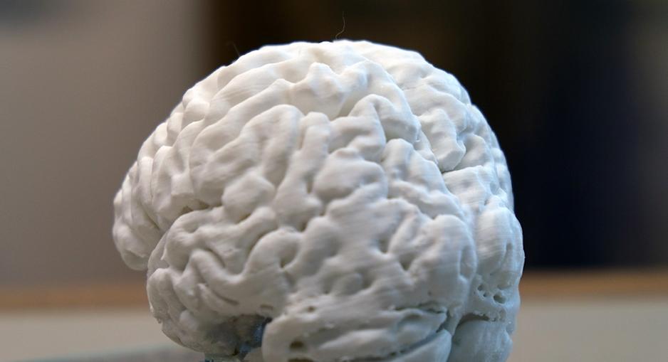 Beynin3D Kopyası Yapıldı